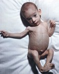 a PS baby showing malnourishment