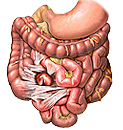 Adhesions can form without an obvious cause, but usually result from damage to tissue and organs caused by surgery, such as those shown in this diagram caused by an appendectomy.