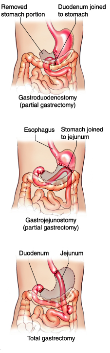 Definition Of Stool How To Get Rid Of Constipation