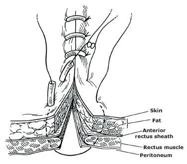 Retention suture02