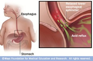 Reflux or GERD in babied ((c) Mayo Clinic)