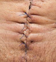 Scar belly01c