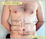 Abdomen incisions1