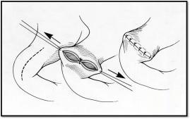 Pyloroplasty